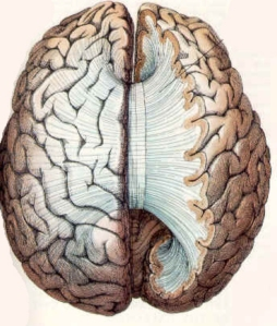 corpus callosum connecting the cerebral hemispheres
